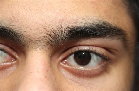 Eyebrow hairs sticking up - Beauty & Fashion - Pretty Ugly