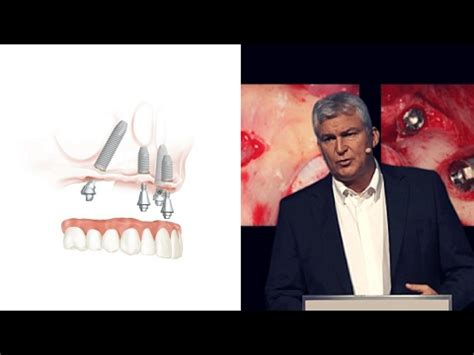 The evolution of the All-on-4® treatment concept | Nobel