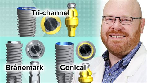 Nobel Biocare Closed Tray Impression Copings - YouTube