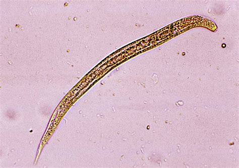 Nematodes: The Microscopic Organisms Taking Over The World